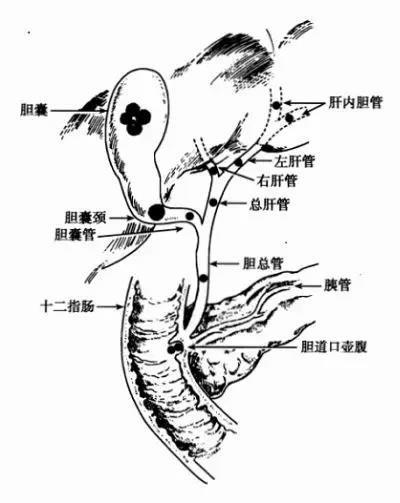 症 原因 胆石